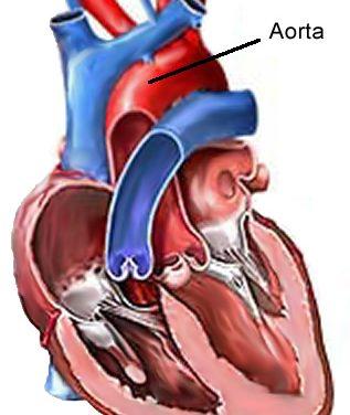 Insufficienza aortica: perché si rischia la vita