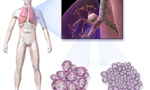 Anticorpi che attaccano il tumore: il successo di Keytruda
